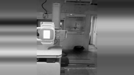 外国男子在医院病房内无意间拍到胳膊超长的怪异男子!