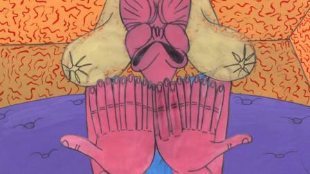 女孩天生手臂上长满手指,不仅越长越多,还像棉花糖一样软!