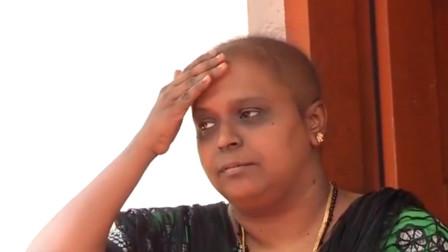 女子化疗数月被告知是误诊:头发几乎掉光