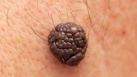 癌症来了,身体会出现这5种变化,提醒:尤其皮肤变化最明显