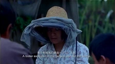 村妇吃饭不敢脱帽子,原来是脸被毁容,掀开帽子竟如此尴尬!
