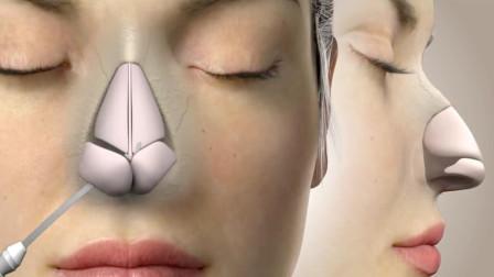 鼻子整形是怎么做到的?动画模拟手术过程,看完你还想去吗?