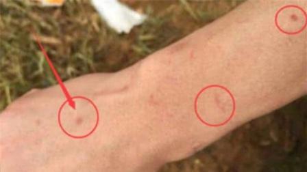 """肝癌不痛不痒,一旦身上出现这种""""小红点"""",肝癌一触即发!"""