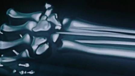 外国小伙接受改造实验,重塑造全身的骨骼,醒来后令人不可思议!