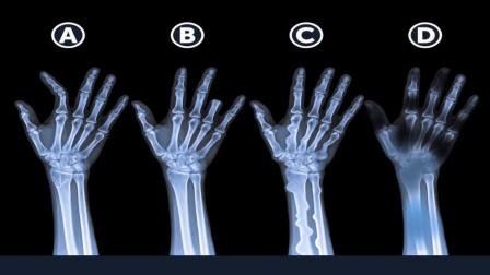 脑力测试:画面中4个人的手指,哪个是死人的,为什么?