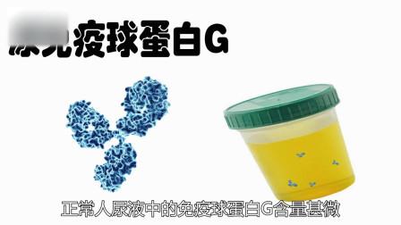 尿液中的尿免疫球蛋白G你了解多少呢?
