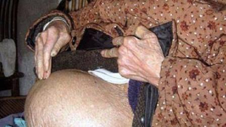 """全球最霸道""""婴儿"""",肚子里呆了61年,出生时妈妈已91岁!"""