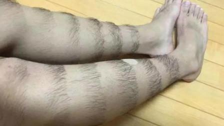 男性的腿毛有的人多有的人少,这是为什么,专家解答