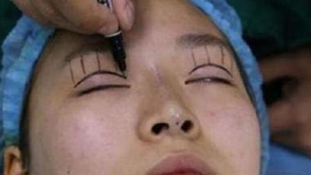 那些割了双眼皮的人,到10年之后会变成什么样?希望不要后悔