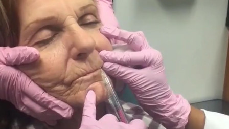 玻尿酸有这么神奇吗?80岁老奶奶亲自尝试,一起看一下吧!