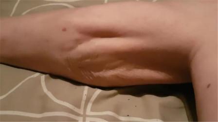 腿抽筋不仅仅是因为你缺钙了,那是因为什么?还有缺爱么?
