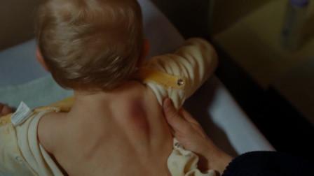 让爱飞起来:儿子背上发生红肿,妻子怪罪丈夫,丈夫却不以为意