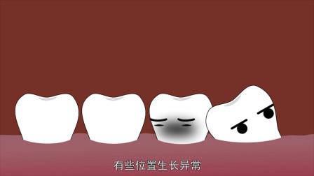 拔智齿会有什么危害,看了视频之后,你觉得你需要拔智齿吗