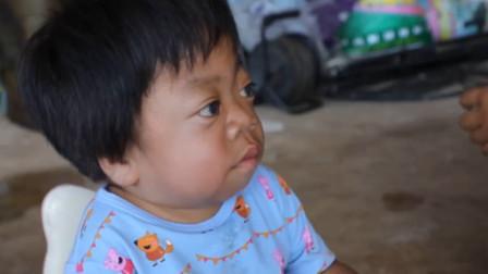 心疼!云南5岁女童患罕见病 面容比妈妈苍老