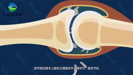得了痛风不能吃海鲜?其实这两种海鲜可以放开吃!不影响尿酸水平
