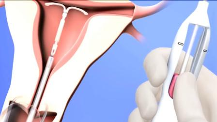 女人上环手术是如何进行的?3D动画还原全过程,看完让人心疼!