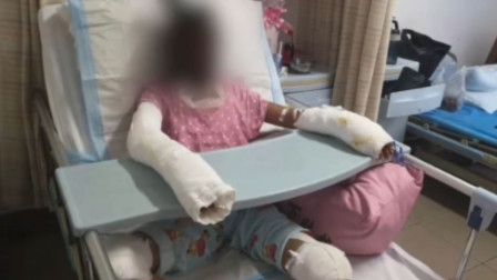 女孩模仿易拉罐爆米花被烧重伤 因感染过重离世