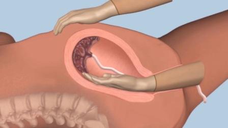 产后手剥胎盘究竟有多疼?3D动画模拟全过程,看完冷汗直流!
