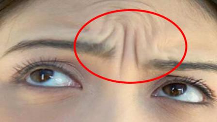 眉毛中间有川字纹注意了,这种人的命运不好?看看有没有你