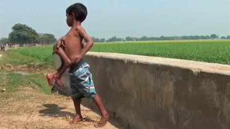 """印度男孩长有8只手脚,同学排挤为""""怪物"""",村民朝拜为""""神灵"""""""