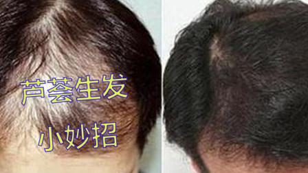 天天掉头发?2个芦荟生发小方法,坚持用让头发渐渐变浓密