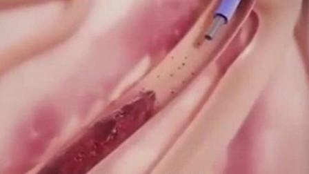 """如果""""输液时""""血管内被打进空气,后果有多严重?医生告诉你真相"""