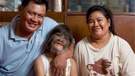 """泰国""""狼人女孩""""要出嫁了,毛发剃掉后,简直换了一副模样!"""