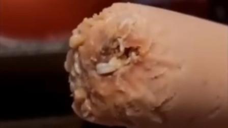 女子称双汇火腿肠吃出一嘴活虫 厂家业务员:领导说赔100元