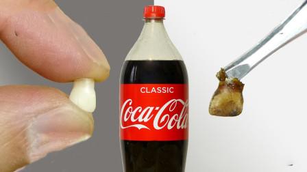 可乐真的会腐蚀牙齿吗?老外将牙齿泡在可乐中,发生了这种变化