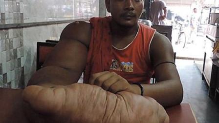 """印度男长20公斤手臂,被称为""""恶魔之子"""",被迫远走他乡"""