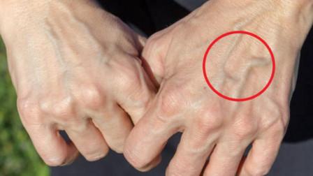 """乳腺病发现就晚期?医生警告:一旦手臂这处""""疼"""",别怀疑,或许是大病"""