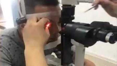 打板栗出现意外,右眼被扎入6根板栗刺,男子一时大意险些失明