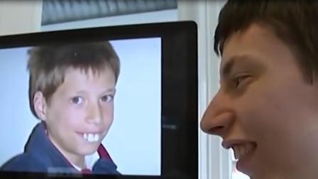 男孩因为兔牙很自卑,没想到整牙之后,网友直言:亲妈都认不出啊