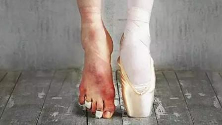 芭蕾舞者脫下鞋襪后的腳,你敢看完嗎?原來白天鵝也不好當