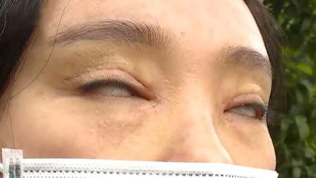 安徽一女子花万元整容后双眼无法闭合 院方:正常现象