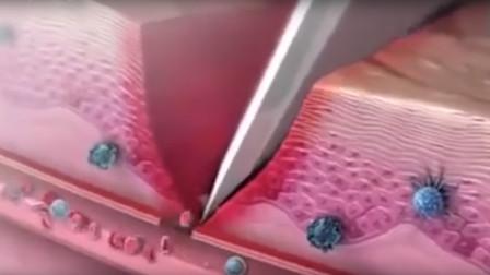 在100倍显微镜下,人体伤口是怎么样的,原来伤口是这样愈合
