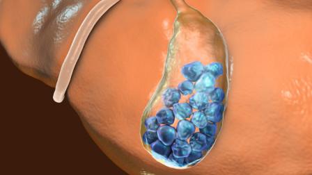 為什么膽結石偏愛糖尿病人專家指出2個原因是根源