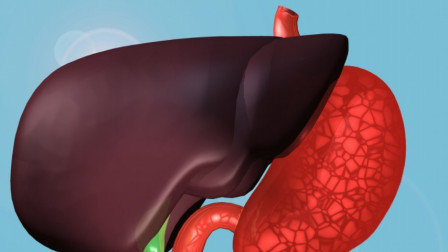 得了脂肪肝,如何控制饮食?忠言:有3点不能忽视