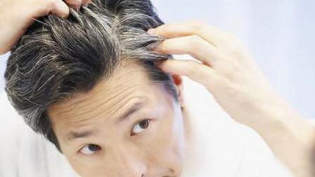 年纪轻轻,早生华发,这是疾病的征兆吗?