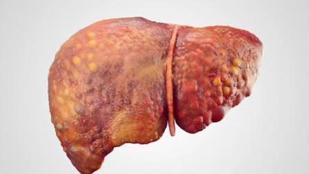 40岁后是肝病高发期,不论男女,要多吃这5类食物,肝脏更健康