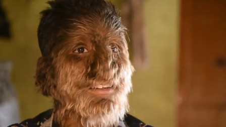 印度男孩满脸长毛,长度达10厘米,被当地人称为狼人!