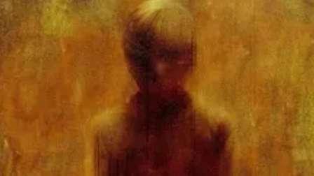 男童患上未知疾病变为魔童