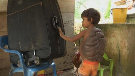 """现实版的""""龟仙人"""",小男孩身患怪病,背上长出大""""龟壳"""""""