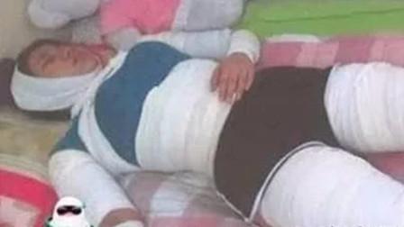 为减肥你做过什么奇葩事?韩国女子全身缠绷带3年!网友:狠人!