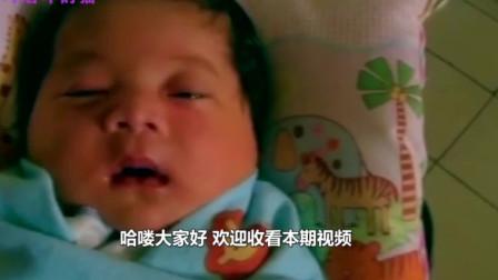 真正瓷娃娃:英国5个月大女婴骨骼天生超脆,打个喷嚏也可能骨折