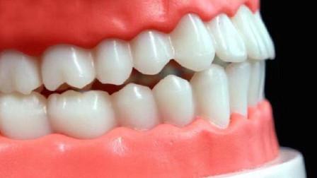 牙齿很脏又发黄,简单一种刷牙方法,多难看的牙齿都能越刷越白