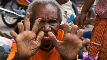 """原始部落的""""残忍""""习俗,亲人去世后,女性要切掉手指来祭奠"""