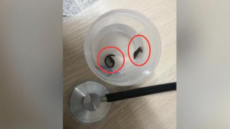 福建一男子咳嗽2个月 体内取出2条活水蛭