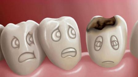 蛀牙真的是被虫子吃空的吗?医生说出实情,看后长知识了!