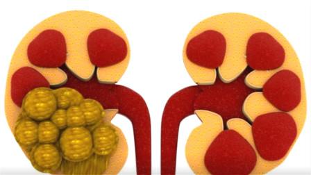 3D动画演示如何清理肾结石,看着都疼,一定记得多喝水